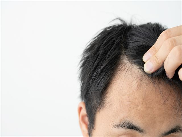 食生活は髪の毛に影響する!?agaと食生活の関係と改善策